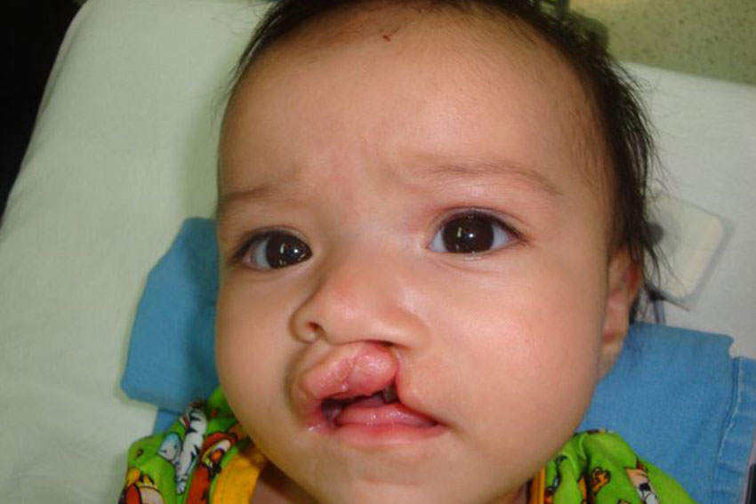 Alexa before cleft surgery