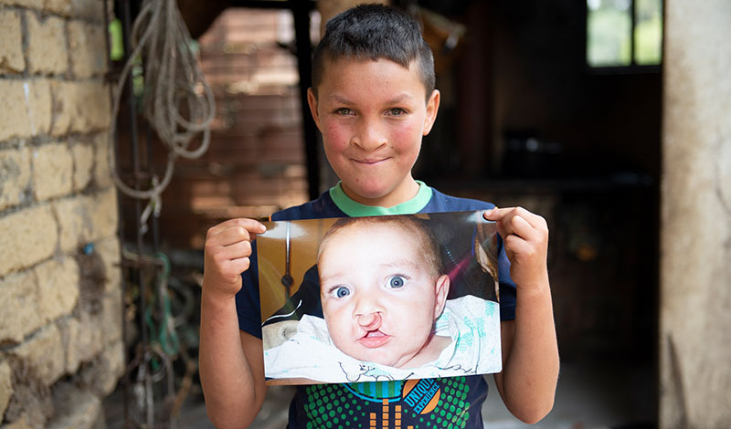 Neitan holds his baby picture before cleft surgery